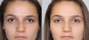 Сломанный нос со смещением какая степень тяжести