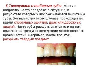 Какая статья за выбитые 6 зубов