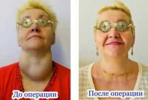 Сколько держат на больничный после операции на щитовидной железе